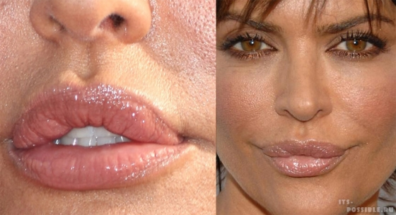 Накачка половых губ