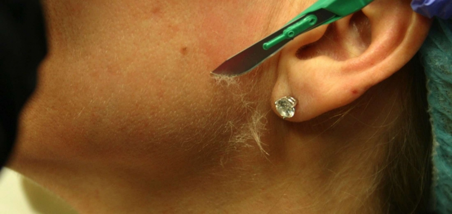 Показать практически бритье машонки пениса видео фото 50-965