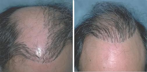 Пересадка волос белгород