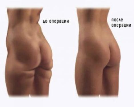 Хирургическое увеличение пениса