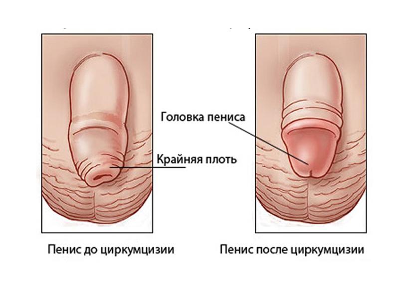 Киста яичников размеры для операции опасные и нормальные