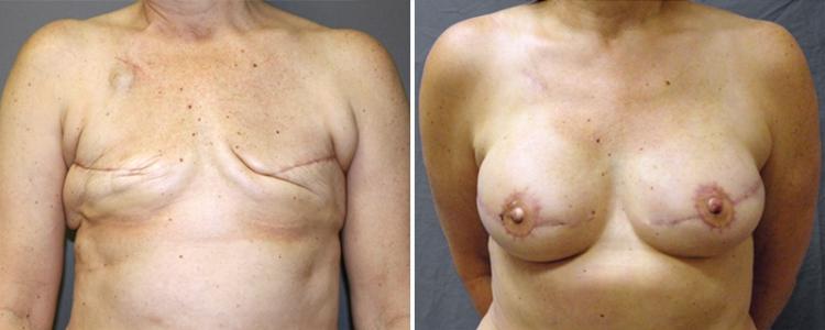 Рейтинг хирургов пластики груди