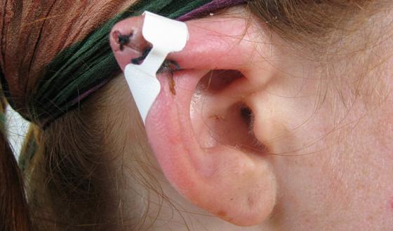 Как сам сделать ухо поменьше 668