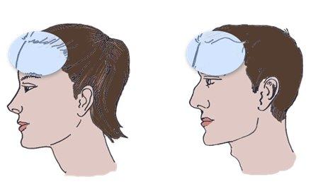 Феминизация линии роста волос